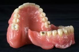 kunstgebit pijnlijk tandvlees
